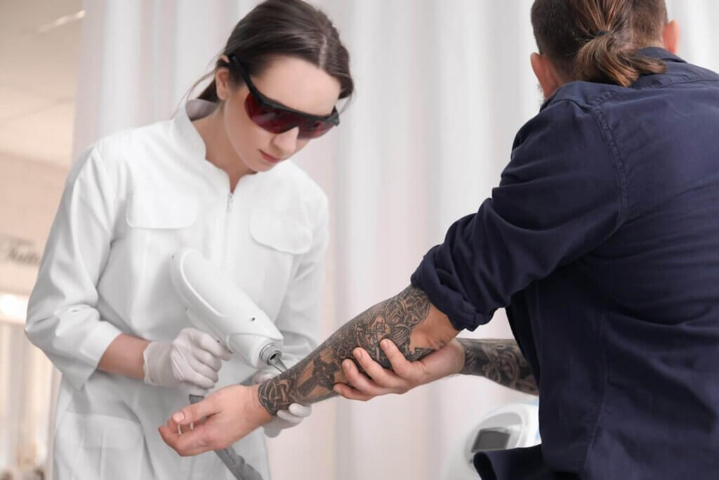 complete tattoo removal 1024x683