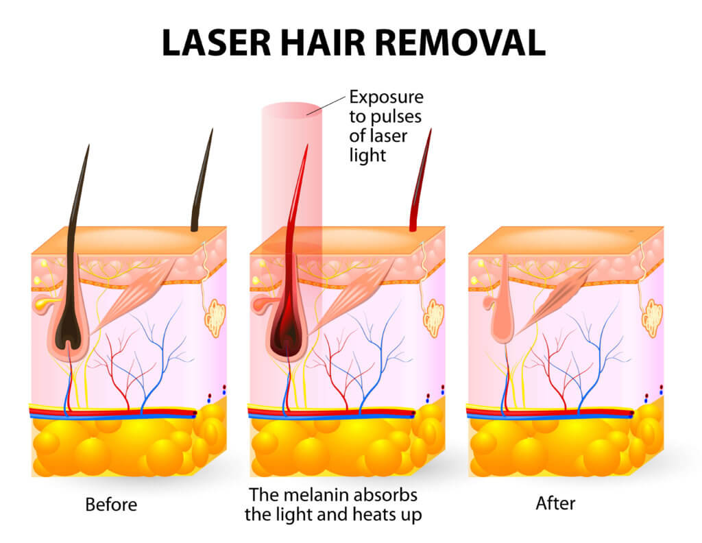 how laser hair removal works 1024x792