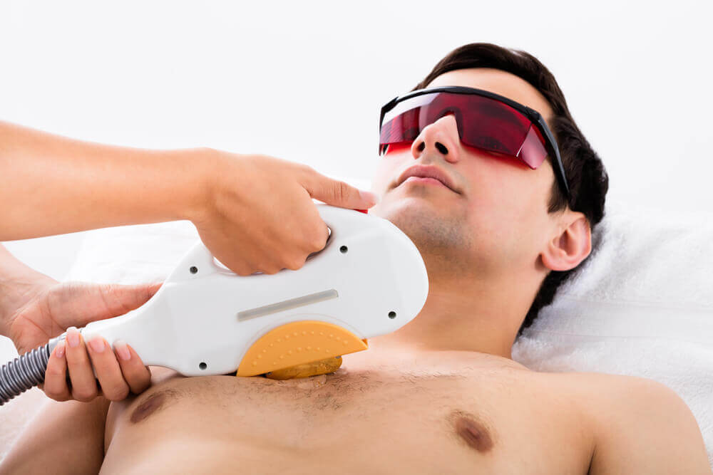 ingrown hair laser removal