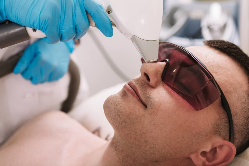 laser nose hair removal 1024x683