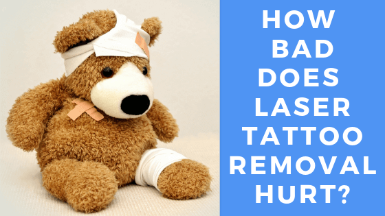 how bad does laser tattoo removal hurt