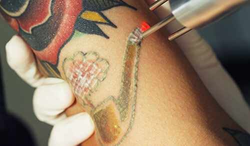 tattoo removals